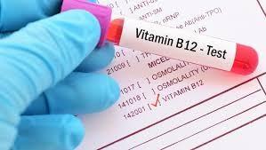 Bebeklerde B12 Eksiliği Nedir ve Tedavisi Nasıldır?